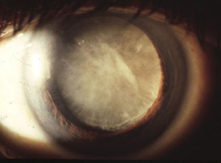 Zaćma - katarakta